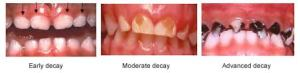 http://www.cda.org/Portals/0/pdfs/fact_sheets/early_childhood_caries_english.pdf
